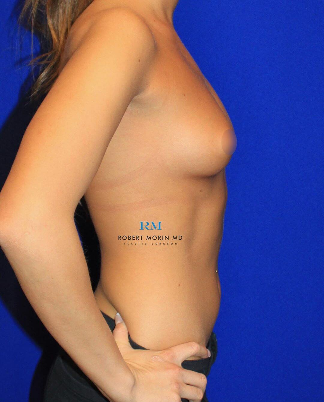 Woman's body, Before Breast Augmentation Treatment, right side view, female patient 1