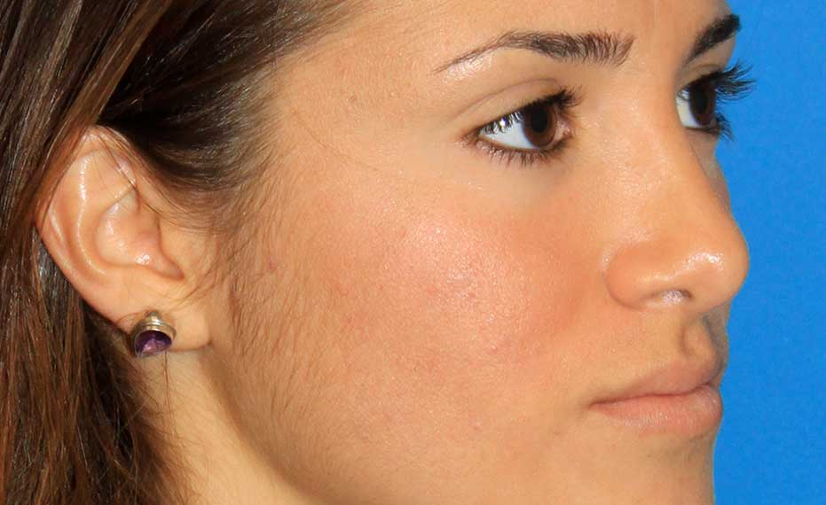 Rhinoplasty - After Treatment Photo - female patient