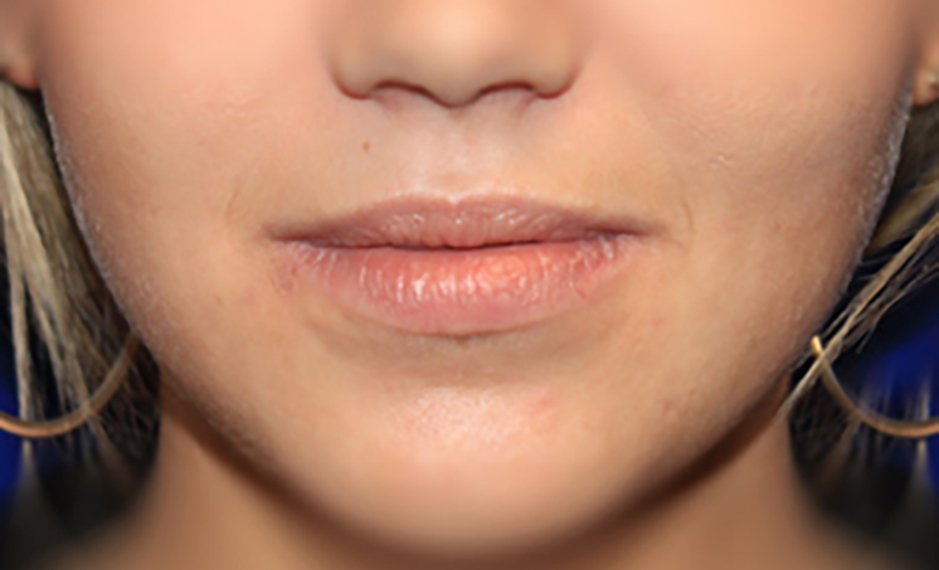 Lip Augmentation - Before Treatment Photo - female patient