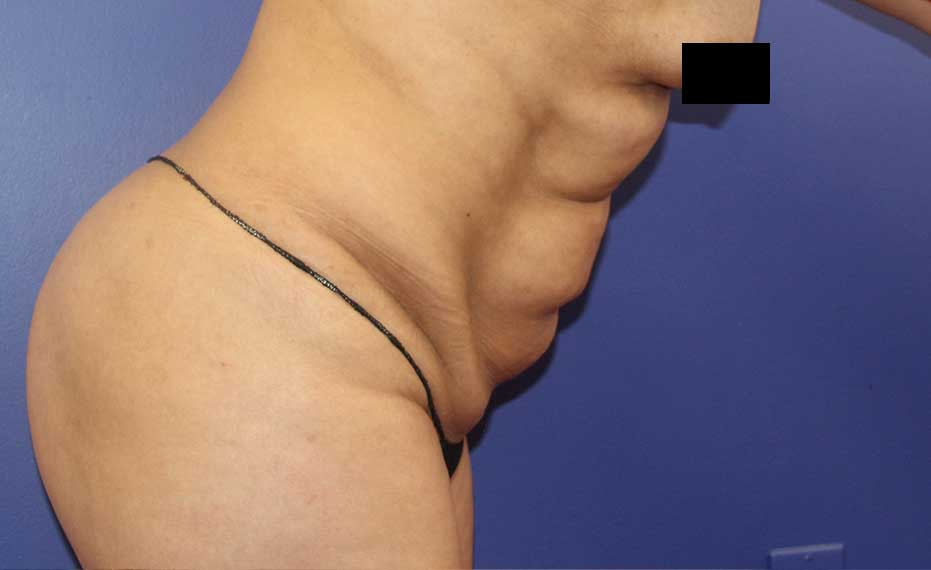Abdominoplasty - Before Treatment Photo - female patient