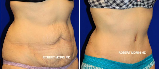 Abdominoplasty - Before and After Treatment Photos - female patient 1