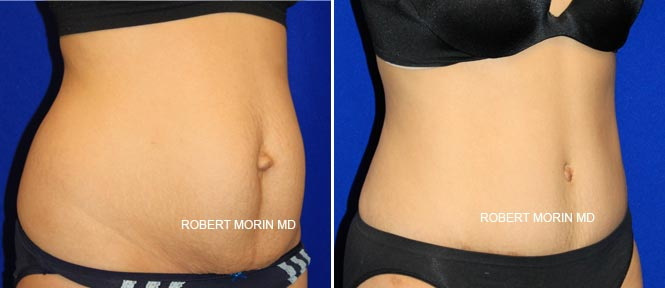 Abdominoplasty - Before and After Treatment Photos - female patient 2