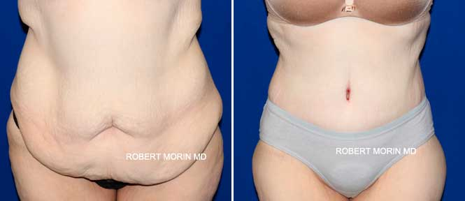 Abdominoplasty - Before and After Treatment Photos - female patient 3