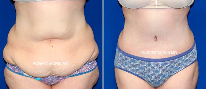 Abdominoplasty - Before and After Treatment Photos - female patient 4
