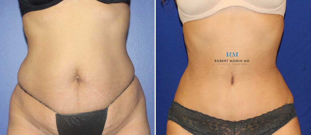Abdominoplasty - Before and After Treatment Photos - female patient 6
