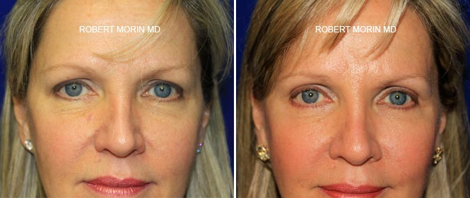 Blepharoplasty Gallery - Before and After Treatment Photos - female patient 1