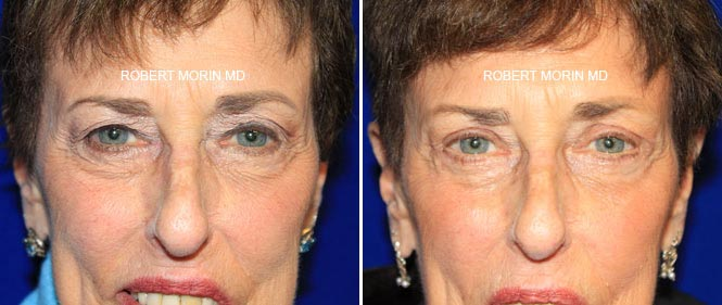 Blepharoplasty Gallery - Before and After Treatment Photos - female patient 2