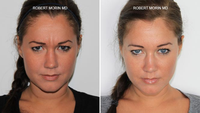 Botox - Before and After Treatment Photos - female patient 1
