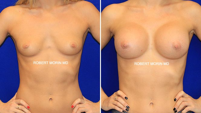 BREAST AUGMENTATION - Before and After Treatment Photos - female patient 2