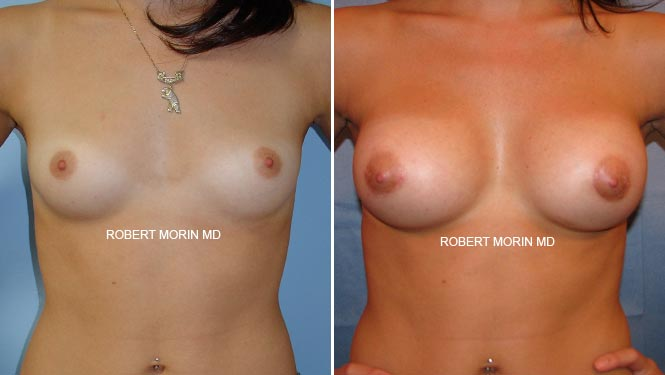 BREAST AUGMENTATION - Before and After Treatment Photos - female patient 3