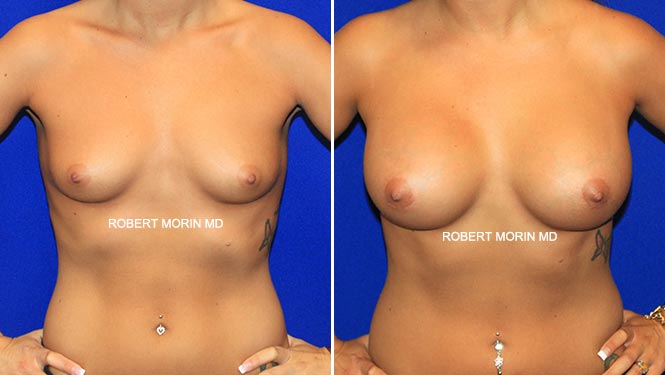 BREAST AUGMENTATION - Before and After Treatment Photos - female patient 4