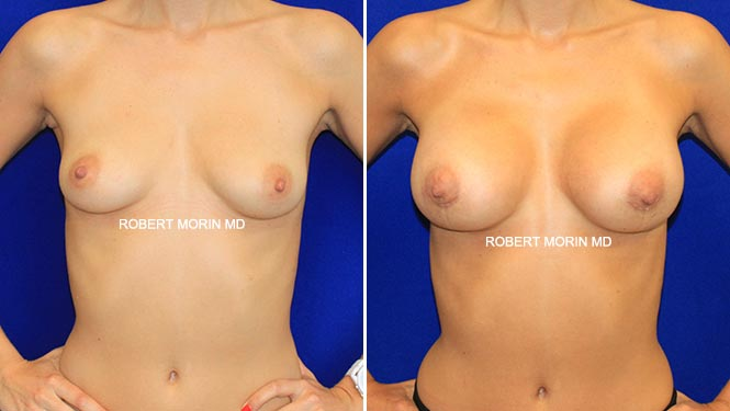 BREAST AUGMENTATION - Before and After Treatment Photos - female patient 6