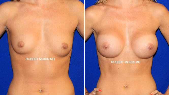 BREAST AUGMENTATION - Before and After Treatment Photos - female patient 7