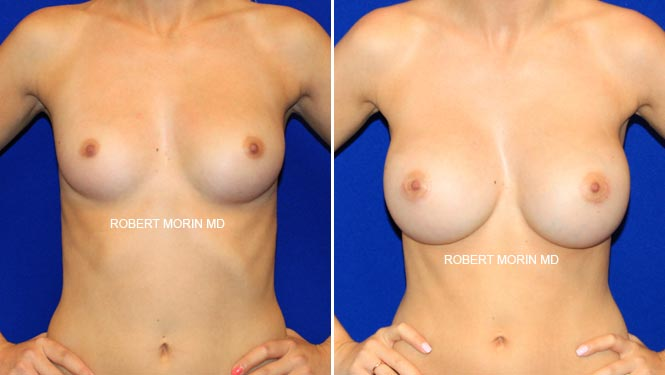 BREAST AUGMENTATION - Before and After Treatment Photos - female patient 5