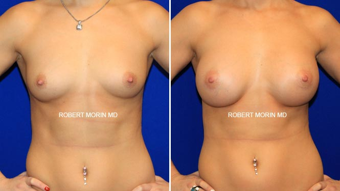 BREAST AUGMENTATION - Before and After Treatment Photos - female patient 11