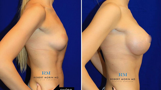 BREAST AUGMENTATION - Before and After Treatment Photos - female patient 14