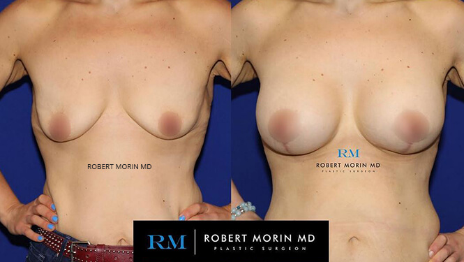 BREAST AUGMENTATION - Before and After Treatment Photos - female patient 15