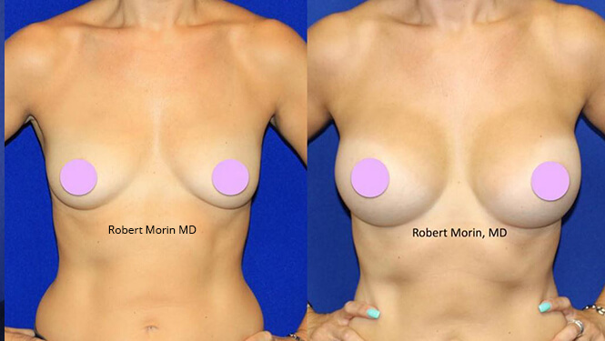 BREAST AUGMENTATION - Before and After Treatment Photos - female patient 16