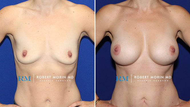 BREAST AUGMENTATION - Before and After Treatment Photos - female patient 19