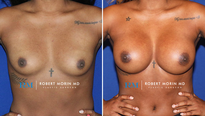 BREAST AUGMENTATION - Before and After Treatment Photos - female patient 20