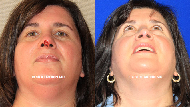 Complex Nasal Reconstruction - Before and After Treatment Photos - female patient 1