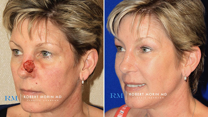 Complex Nasal Reconstruction - Before and After Treatment Photos - female patient 4