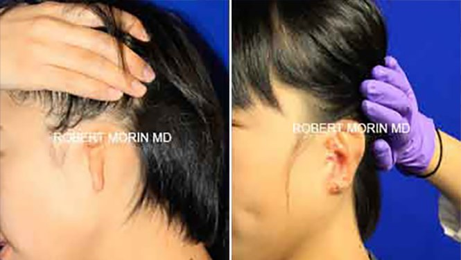 Ear Reconstruction - Before and After Treatment Photos - female patient 7 (side view)