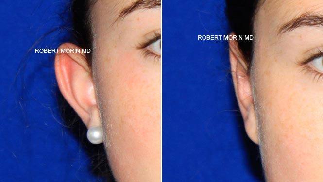 Ear Reconstruction - Before and After Treatment Photos - female patient 1