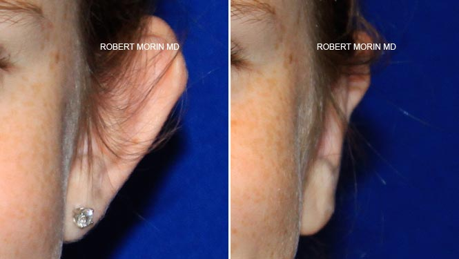 Ear Reconstruction - Before and After Treatment Photos - female patient 3