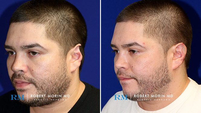 Ear Reconstruction - Before and After Treatment Photos - male patient 6 (oblique view)