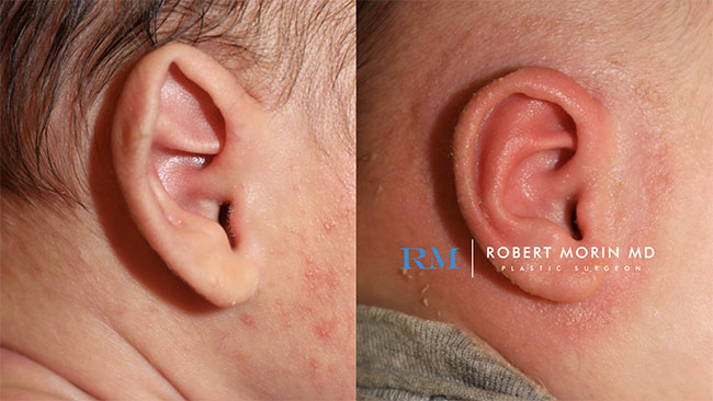 Infant's head, EarWell Infant Ear Molding - Before and After Treatment Photos - right side view, infant baby patient 12