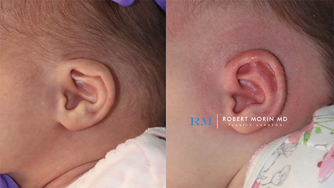 Infant's head, EarWell Infant Ear Molding - Before and After Treatment Photos - right side view, infant baby patient 13