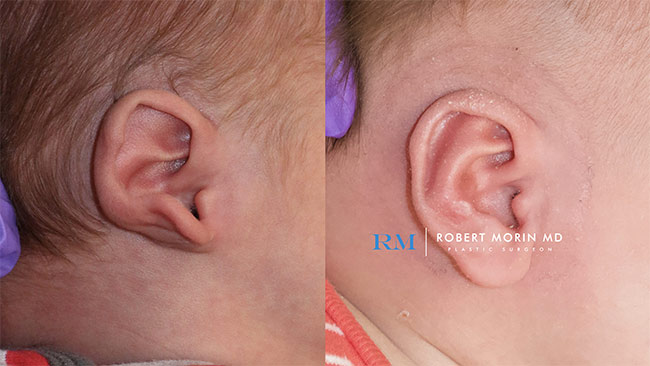 Infant's head, EarWell Infant Ear Molding - Before and After Treatment Photos - right side view, infant baby patient 14