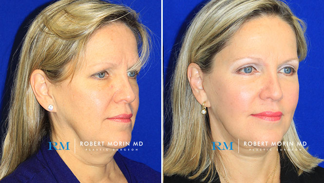 Facelift - Before and After Treatment Photos - female patient 1