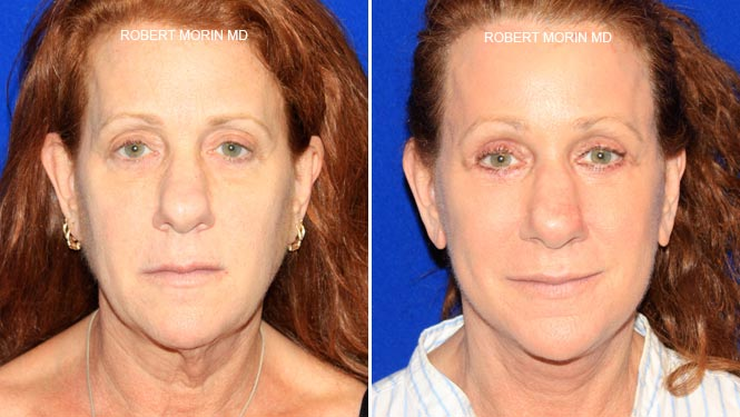 Facelift - Before and After Treatment Photos - female patient 3