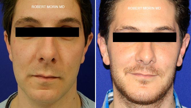 Genioplasty - Before and After Treatment Photos - male patient 1