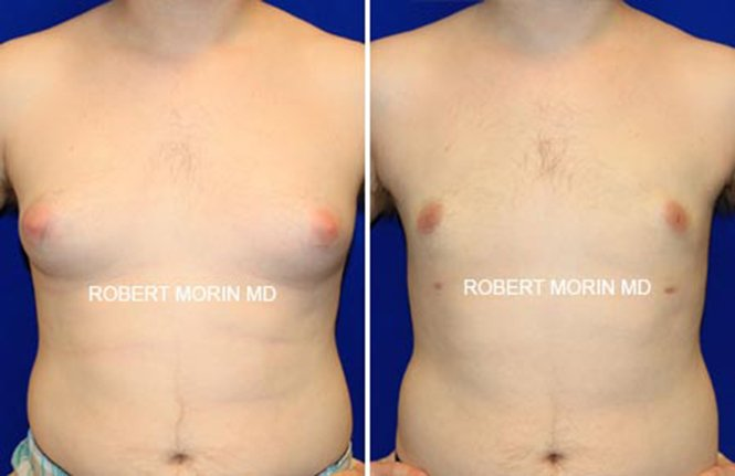 Gynecomastia - Before and After Treatment Photos - male patient 2