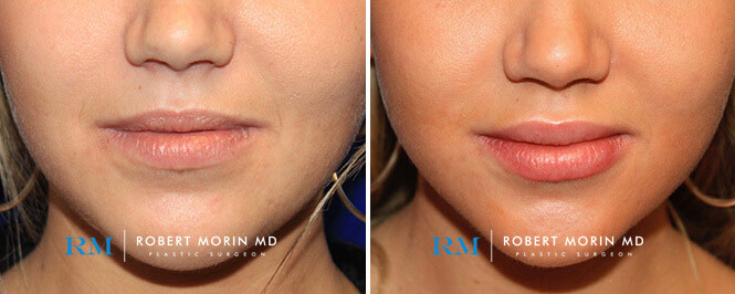 Non-Surgical Rejuvenation - Before and After Treatment Photos - female patient 1