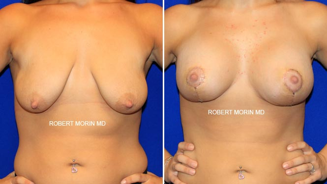 BREAST LIFT (MASTOPEXY) - Before and After Treatment Photos - female patient 1