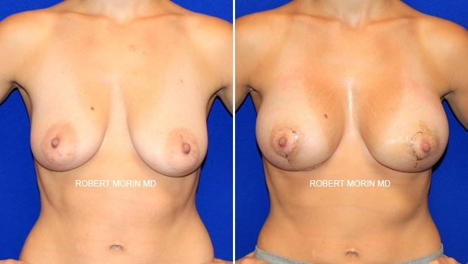 BREAST LIFT (MASTOPEXY) - Before and After Treatment Photos - female patient 2