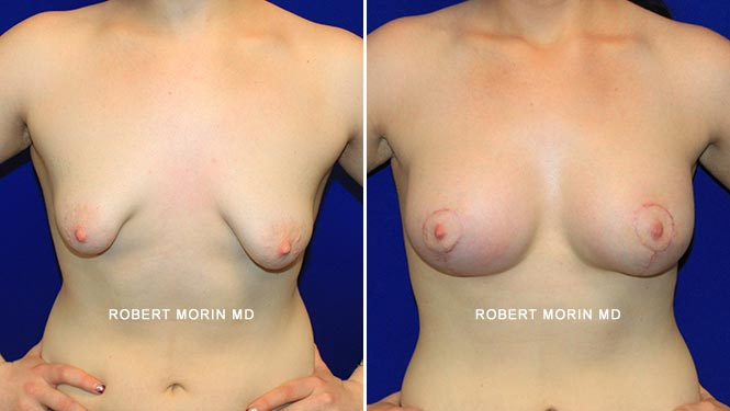 BREAST LIFT (MASTOPEXY) - Before and After Treatment Photos - female patient 3