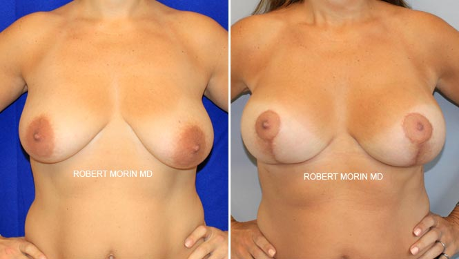 BREAST LIFT (MASTOPEXY) - Before and After Treatment Photos - female patient 4