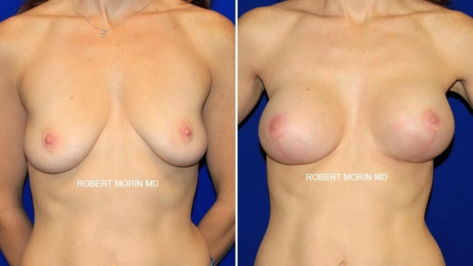 BREAST LIFT (MASTOPEXY) - Before and After Treatment Photos - female patient 5
