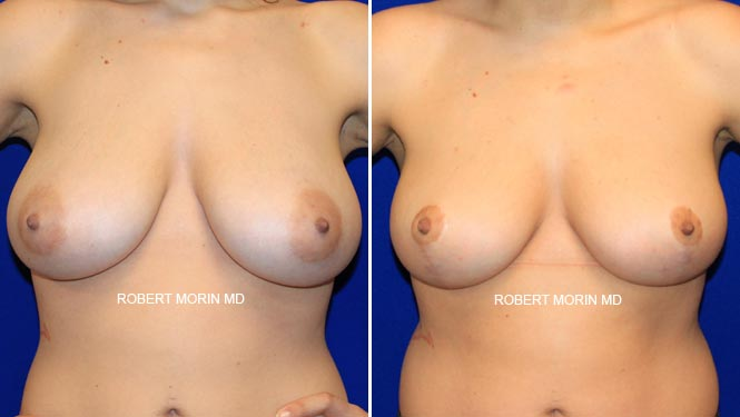 BREAST LIFT (MASTOPEXY) - Before and After Treatment Photos - female patient 6