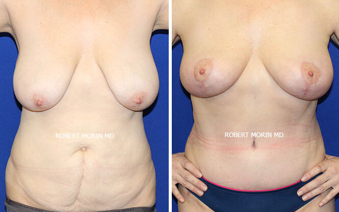 BREAST LIFT (MASTOPEXY) - Before and After Treatment Photos - female patient 7