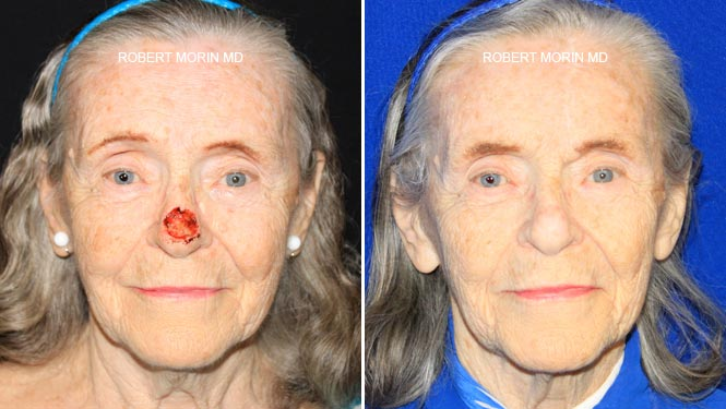 Mohs Cancer Reconstruction - Before and After Treatment Photos - female patient 2