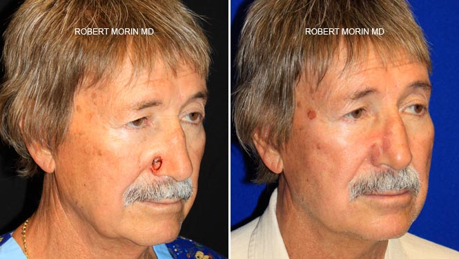 Mohs Cancer Reconstruction - Before and After Treatment Photos - male patient 3