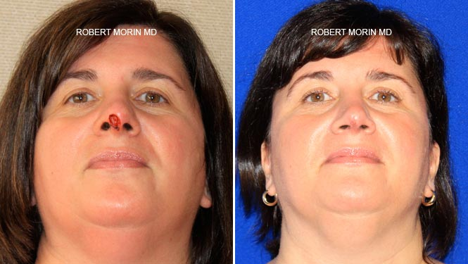 Mohs Cancer Reconstruction - Before and After Treatment Photos - female patient 4
