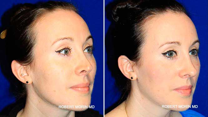 Revision Rhinoplasty - Before and After Treatment Photos - female patient 2 (oblique view)