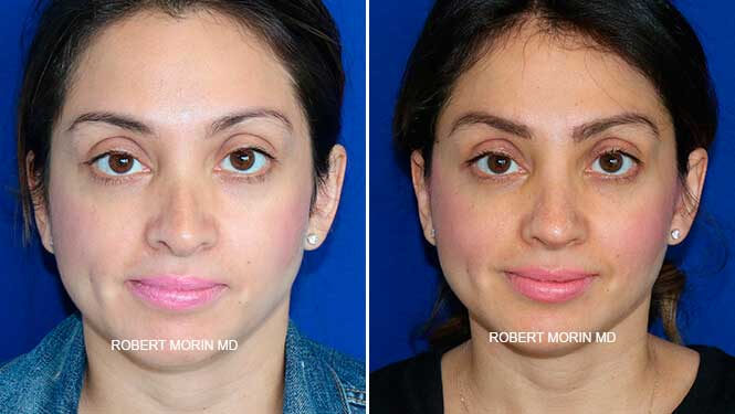 Revision Rhinoplasty - Before and After Treatment Photos - female patient 3